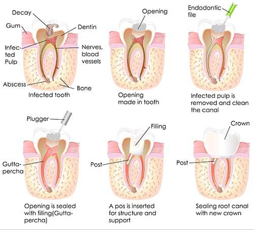 Root Canal Therapy in Marina Del Rey