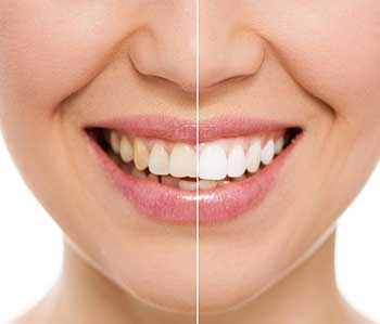 Marina Del Rey Teeth Whitening